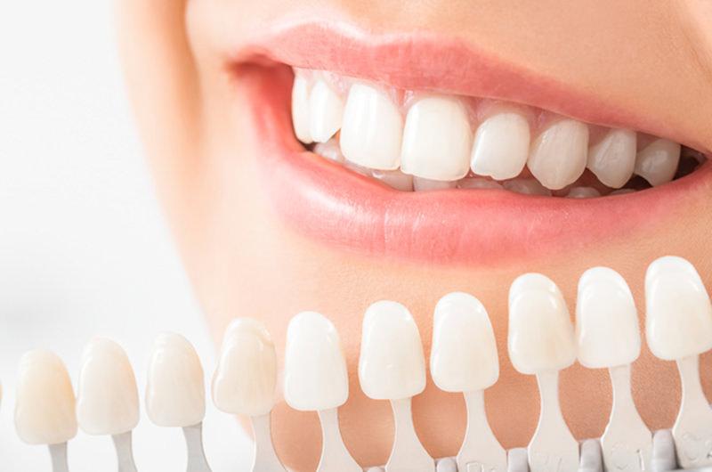 黄ばみやくすみのある歯を白くしたい