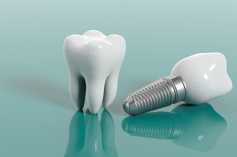 自分の歯のように噛める義歯を入れたい