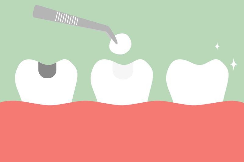 虫歯痕を白く美しい素材で補修したい
